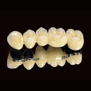452013152152su titan 300x300 Răng sứ Titanium