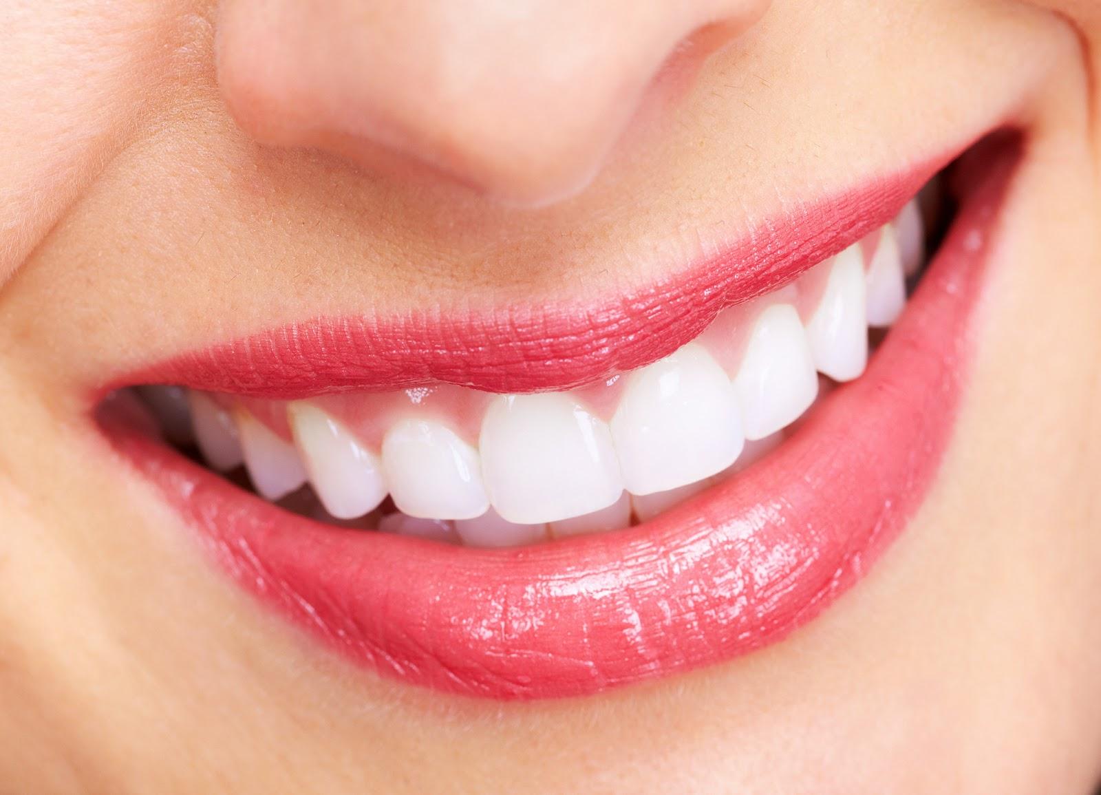 Vấn đề nắn răng ở đâu an toàn nhất Hà Nội
