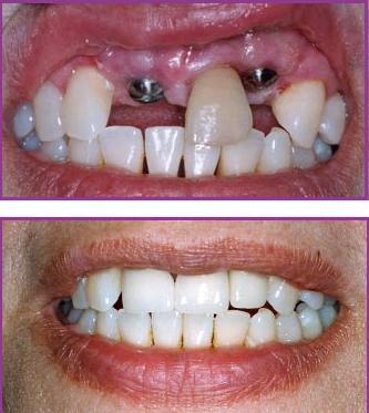 lam-rang-implant-gia-bao-nhieu-2