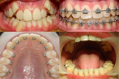 Niềng răng mất thời gian bao nhiêu lâu