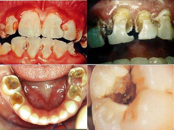 Sâu răng và cách điều trị