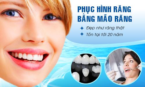 Làm răng sứ ở đâu đẹp