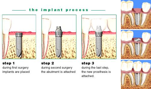 dental-implantsdđ