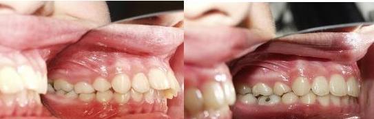 làm thế nào để răng bớt vẩu