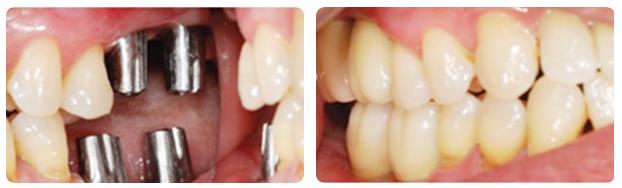 cay-ghep-implant-hieu-qua-cao-voi-vit-abutment-tuy-chinh-a-chau32423