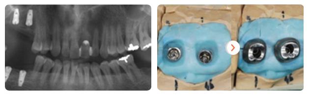 cay-ghep-implant-hieu-qua-cao-voi-vit-abutment-tuy-chinh-a-xhau-212