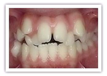 răng cửa mọc lệch
