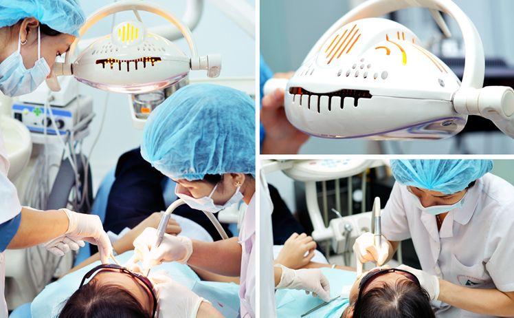 lấy cao răng có ảnh hưởng gì