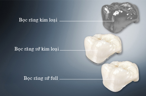 Răng bị mòn men