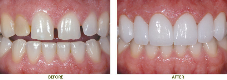 Bọc răng sứ chắc là tác động xấu không cho răng và nướu?