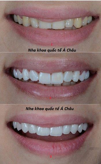 Làm răng sứ thẩm mỹ giá bao nhiêu