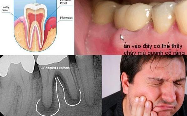 chết tủy sau khi bọc răng sứ