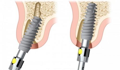 Nguyên nhân cấy ghép răng Implant bị hỏng là gì?