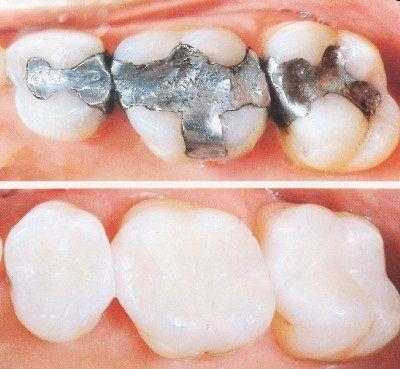 Chụp răng sứ dạng nào ổn nhất lúc này?