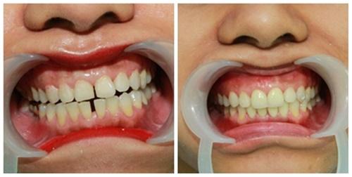 Phương pháp nào sửa răng thưa
