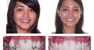 Lợi ích của việc niềng răng chỉnh nha bạn nên biết