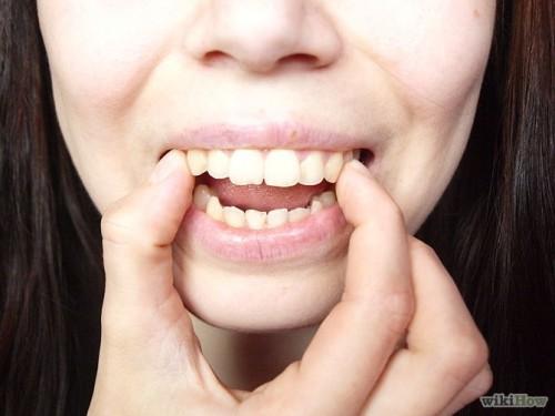 răng cửa bị vỡ mẻ