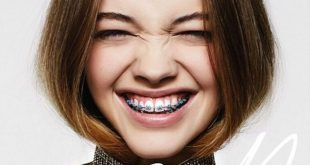 răng bị thưa có nên niềng răng không