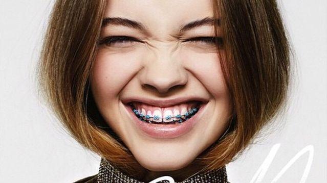Phương pháp khắc phục răng cửa thưa đơn giản
