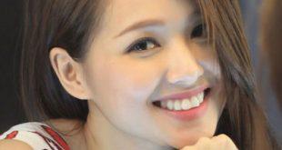 chinh-rang-ho-khong-can-nieng-rang-xoa-bo-mac-cam-lay-lai-van-