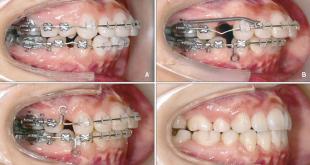 răng vẩu có di truyền không nhỉ