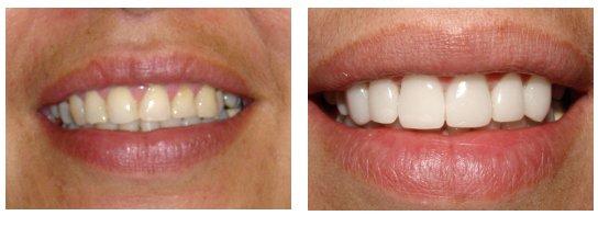 Sự khác nhau giữa hai cách thức  trồng răng Implant và cầu răng