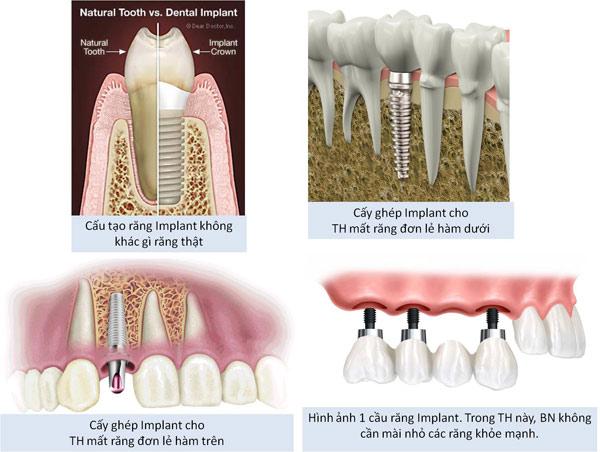 implant-rang-lua-chon-so1-khi-gay-rang-4