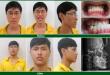 phau-thuat-chinh-ham-mom-1-e1429176653197