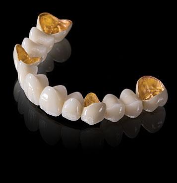 2032600542 cau rang su quy jinnn - Tổng hợp kinh nghiệm về các dòng răng sứ mà bạn phải biết