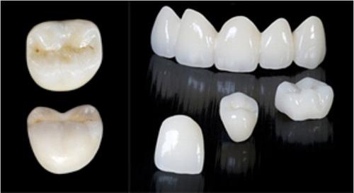 rang su cercon rang su venus rang su zirconia chong e buot rang - Tổng hợp kinh nghiệm về các dòng răng sứ mà bạn phải biết