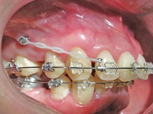 nieng rang ho - Quy Trình chữa răng hô như thế nào an toàn hiệu quả