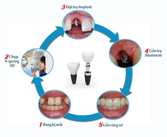 Trong cay ghep Implant a chau - Hình thức cắm ghép răng cửa và những chia sẻ nên biết
