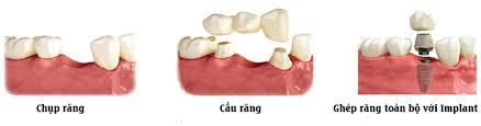 tr%E1%BB%93ng r%C4%83ng gi%E1%BA%A3 - So sánh hai phương pháp cấy ghép răng Implant và cầu răng